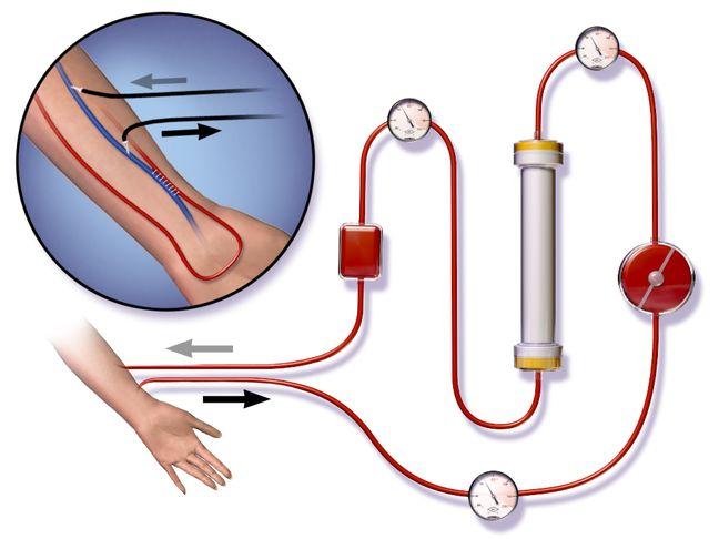 Iran exports dialysis filters worth 1.5mn euros