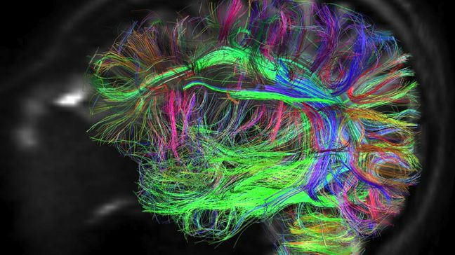 Brain mapping lab opened at Tehran University